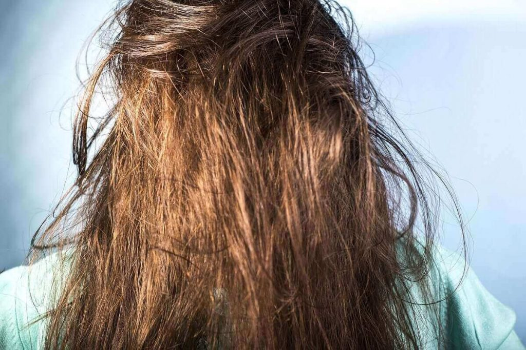 What are the causes of oily hair?